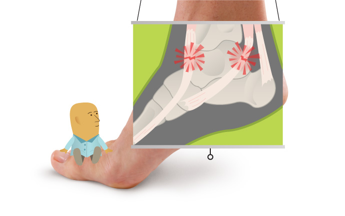 Anyone can develop ankle tendinitis, but those who are not well conditioned to physical exercise may be more at risk; flat-footed individuals may be more prone to it as well.