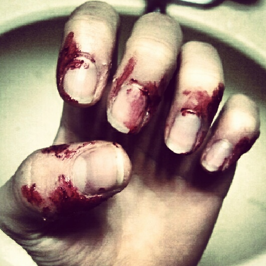 Dermatophagia is a medical condition that causes the patient to bite their own skin, most commonly around fingernails.