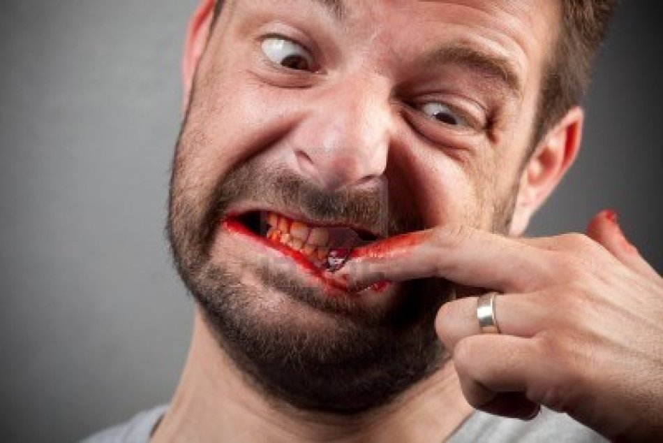 Is there A Cure for Dermatophagia? – Put That Cheese Burger Down!