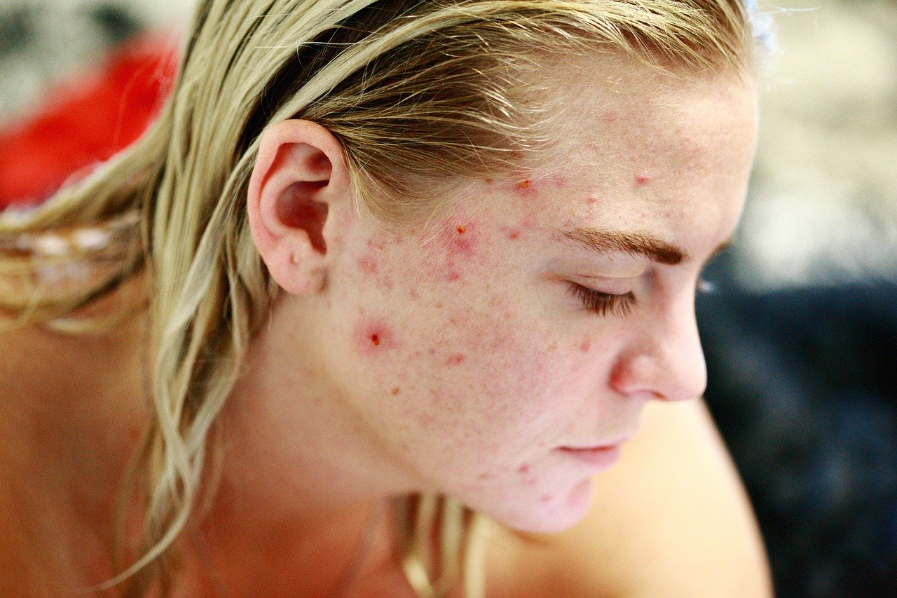 7 Unexpected Acne Breakout Triggers (Sleep Plays A Crucial Role)